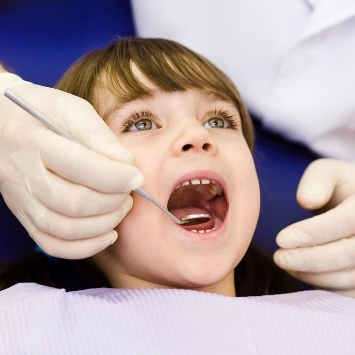 Dental-Sealants at Omni Dental