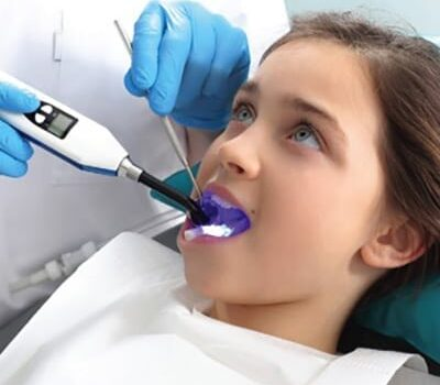 Dental-Sealants-omni dental