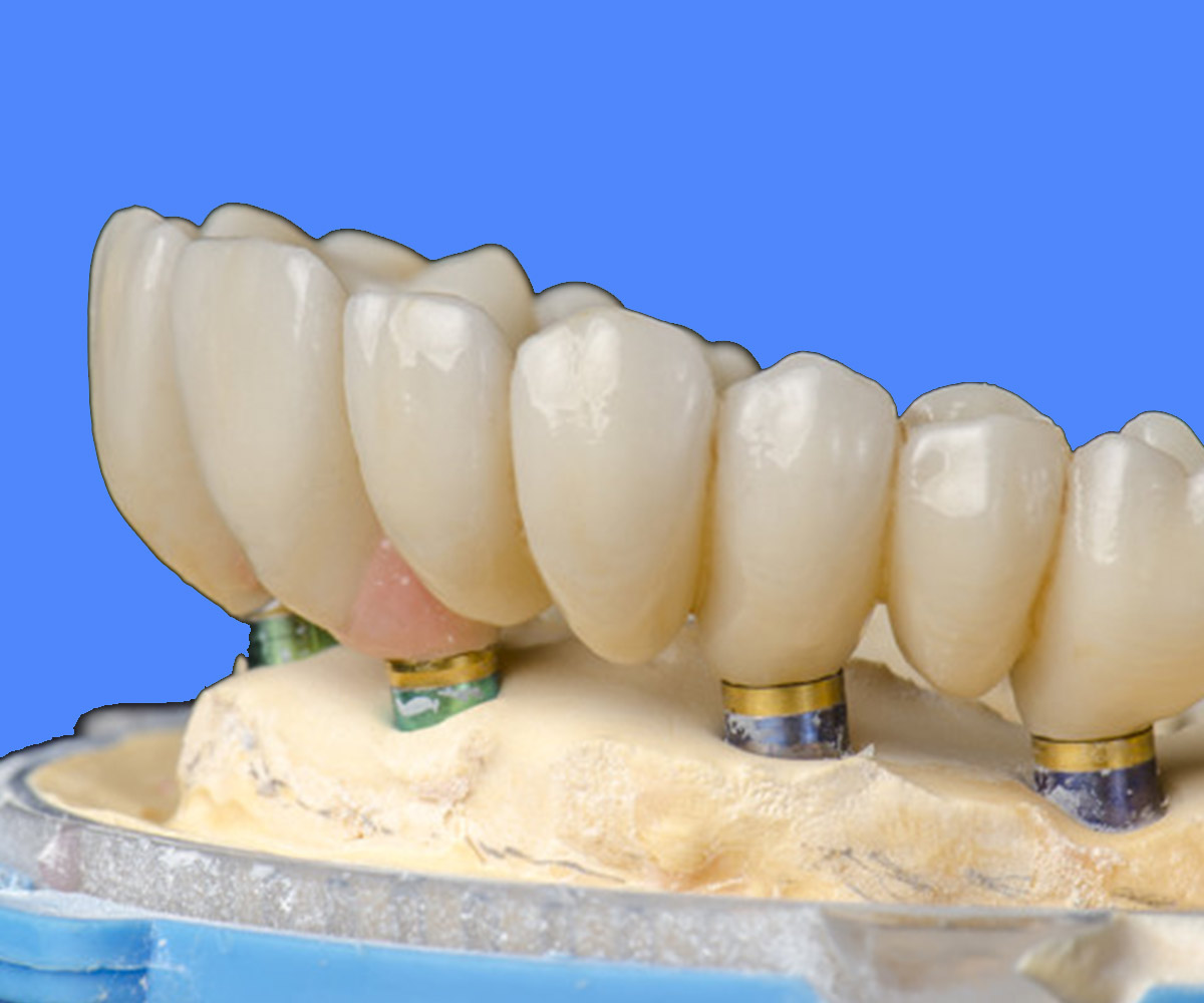Full Arch Dental Implants
