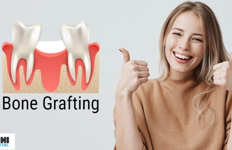 bonegrafting at Omni Dental