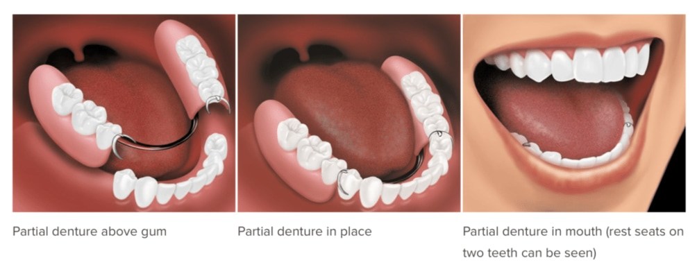 Partial Dentures at omni dental