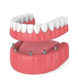 Implant-Retained Denture Cost in arlington heights il