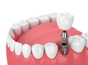 Single Tooth Implant in arlington heights il