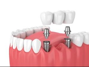 Implant-Supported Bridge in arlington heights il