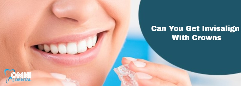 Can You Get Invisalign With Crowns