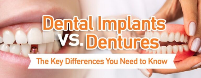 Cost Of Dental Implants in Arlington Heights IL